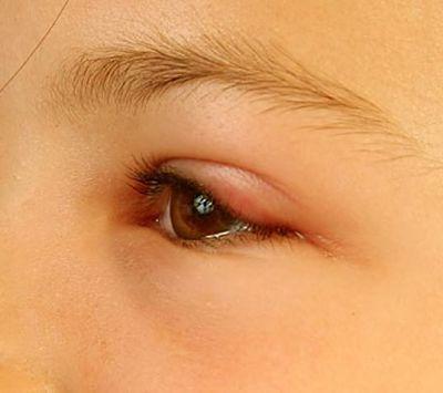 глаз ребенка опух