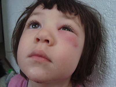 опух глаз после укуса