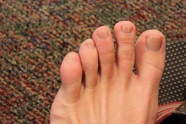здоровые пальцы на ноге