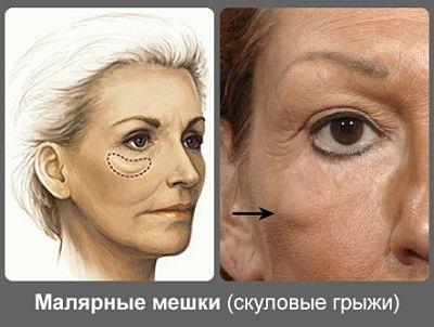 малярные мешки под глазам
