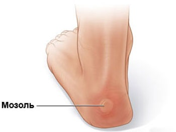 мозоль на ноге