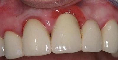 отек десны возле зуба