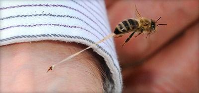 укус пчелы