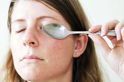 Отек от синяка под глазом как убрать
