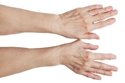отек суставов пальцев рук