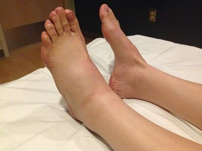 отек левой ноги