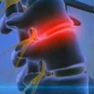 отек костного мозга