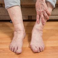 ноги пожилого человека