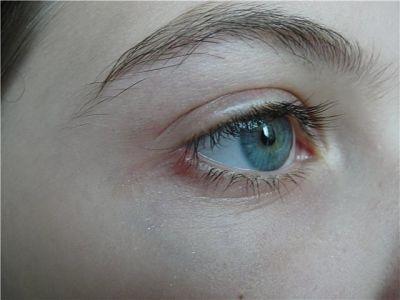 глаз с опухшим веком