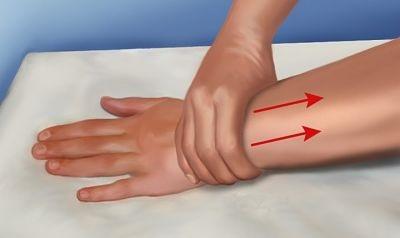 Лимфостаз руки при раке груди лечение