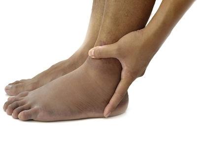 Почему отекает левая нога в щиколотке
